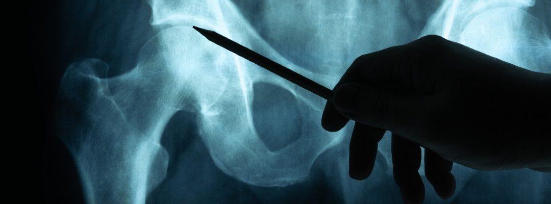 A csontérettség megállapítását segítő Risser Plus rendszer vizsgálata